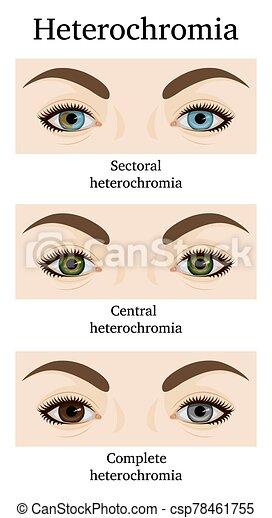 heterochromia és látás)