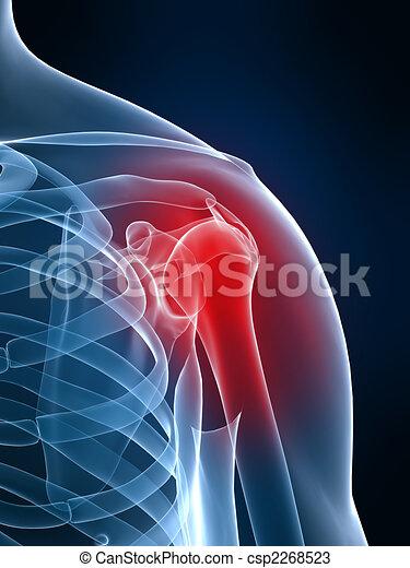 épaule, douloureux - csp2268523