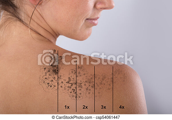 Epaule Tatouage Femme Laser Demenagement Epaule Tatouage Laser Gris Femme Contre Demenagement Fond Canstock
