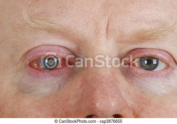 μάτι , ερεθισμένος  - csp3876655