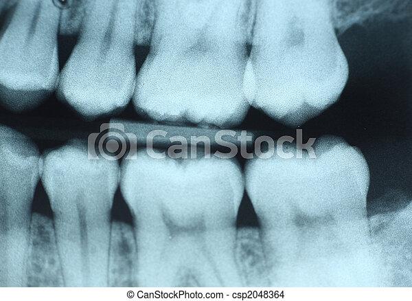 οδοντιατρικός ακτίνα ραίντγκεν  - csp2048364