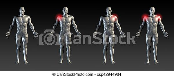 плечо, травма - csp42944984