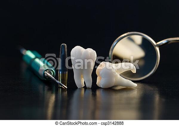 טיטניום, של השיניים, השרש - csp3142888