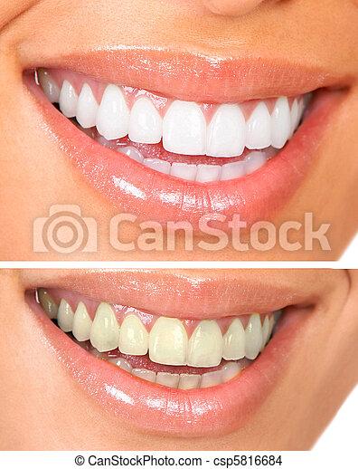 שיניים בריאים - csp5816684