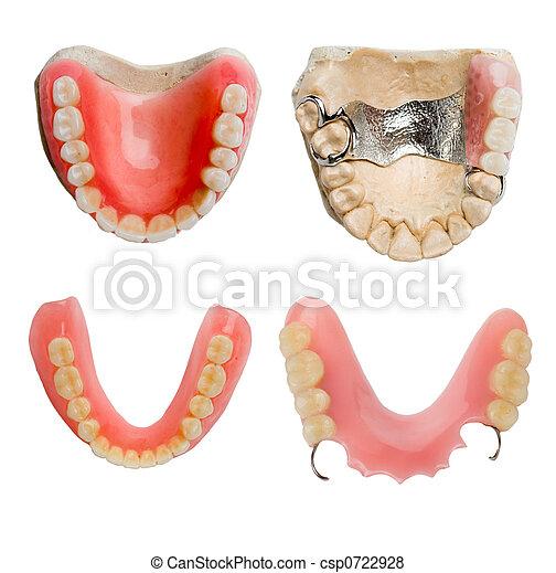 של השיניים, תותבות - csp0722928