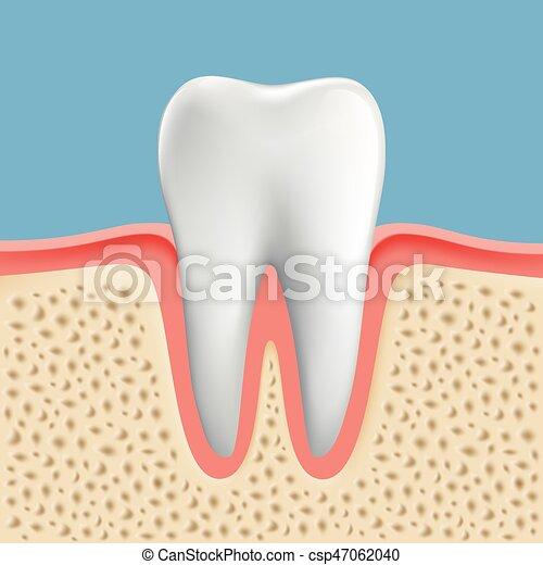 イメージ, ベクトル, カリエス, 人間, 歯 - csp47062040