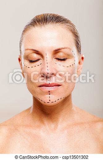 オペレーション, 患者, 化粧品, 女性, 前に - csp13501302