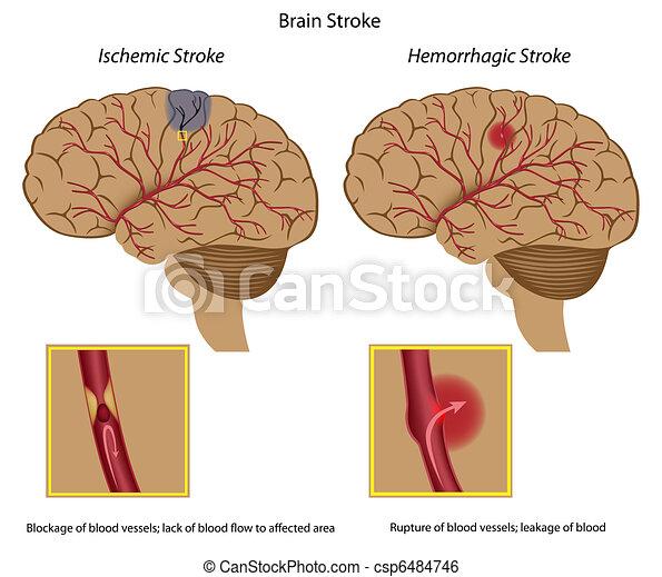 ストローク, 脳 - csp6484746