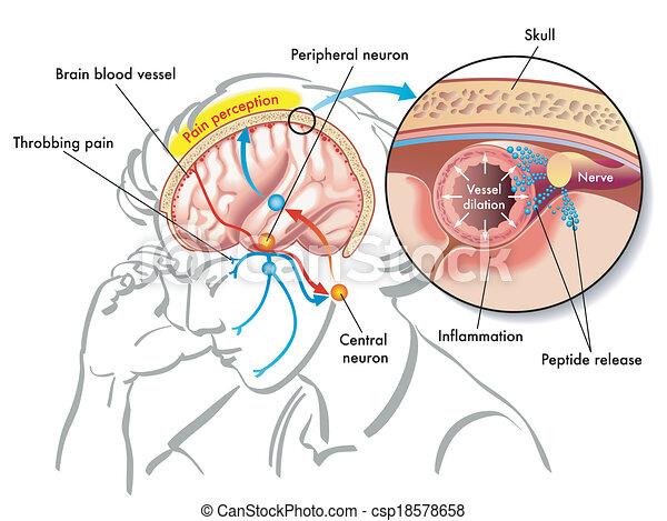 偏頭痛 - csp18578658