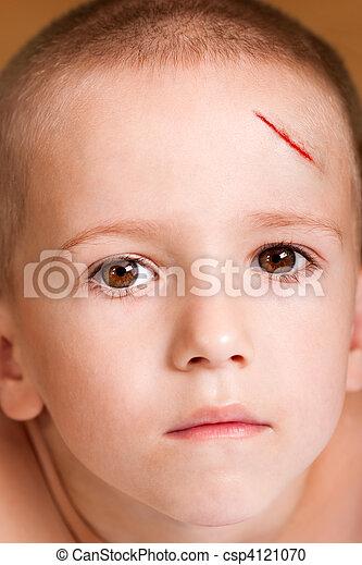 傷, 子供 - csp4121070