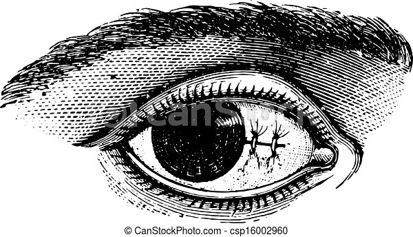 切除, pterygium, illustration., 辞書, labarthe, 型, 後で, -, 1885., 結膜, 縫合, 薬, 普通, dr, 刻まれる - csp16002960
