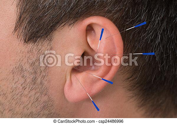 刺鍼術の 針, 耳 - csp24486996