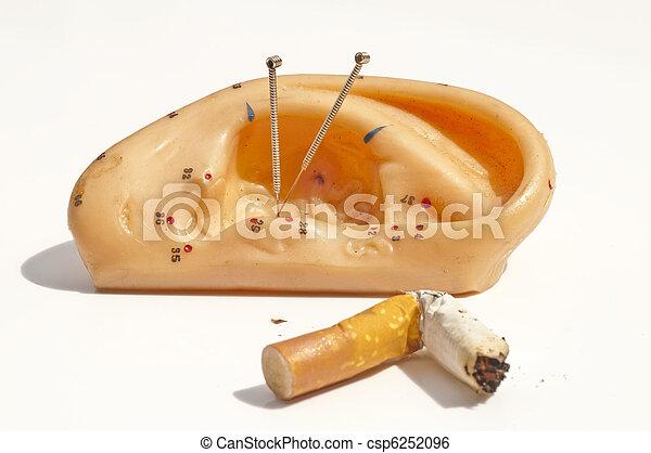 刺鍼術, 喫煙, 止まれ - csp6252096