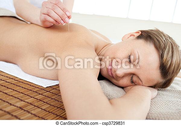 女, 療法, 肖像画, 美しい, 刺鍼術 - csp3729831