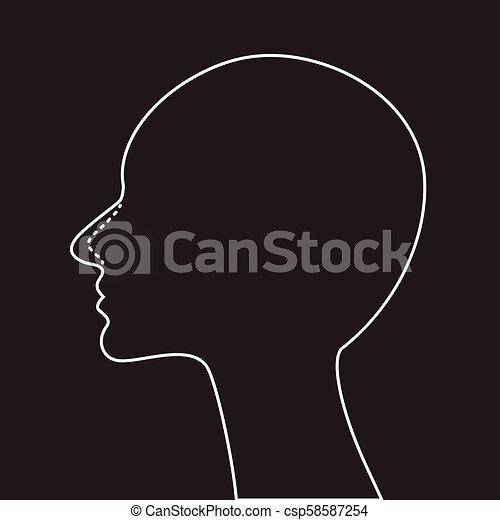 手術, 鼻, rhinoplasty, プラスチック - csp58587254