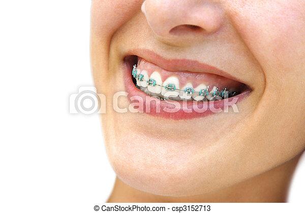 括號, 牙齒 - csp3152713