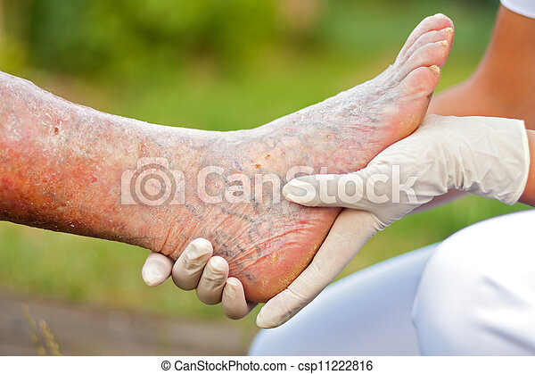 有病, 年長, 腿 - csp11222816