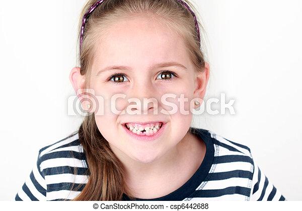 歯, 最初に, 欠けている - csp6442688