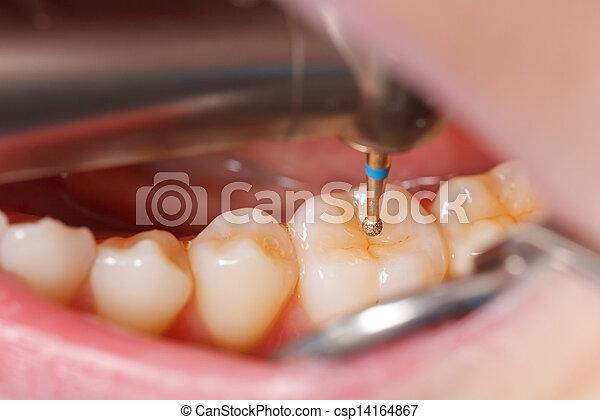 牙齒, 操練 - csp14164867