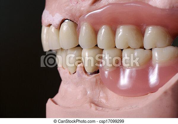 牙齒 - csp17099299