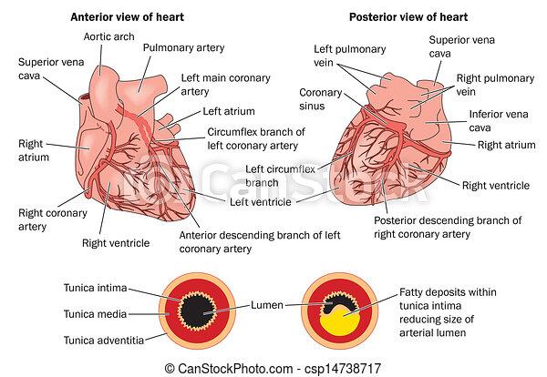 疾病, 心, 冠狀 - csp14738717