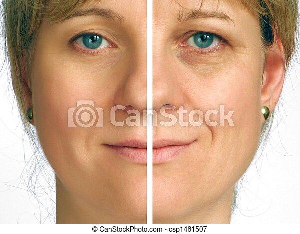 皱纹, 改正, 一半, -, 脸 - csp1481507