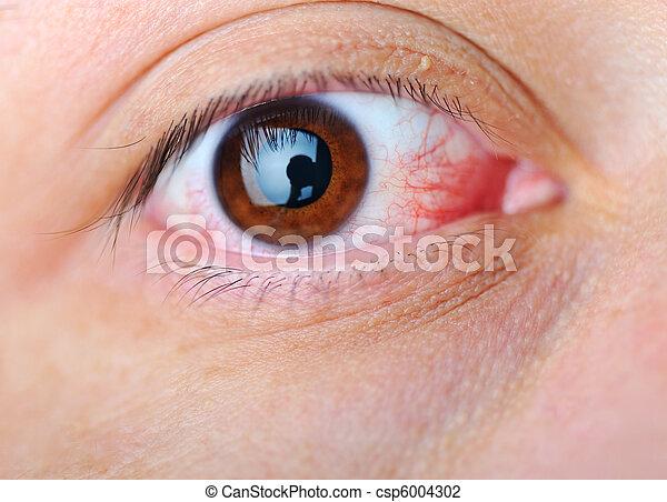 眼睛, 疾病 - csp6004302