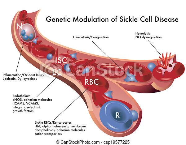 細胞, 鐮刀, 疾病 - csp19577225