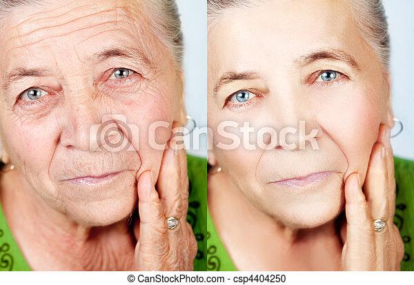 老化, 概念, 美しさ, いいえ, -, しわ, skincare - csp4404250