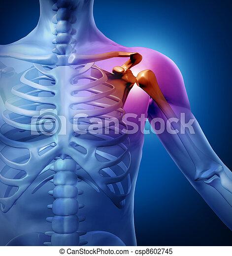 肩, 痛み, 人間 - csp8602745