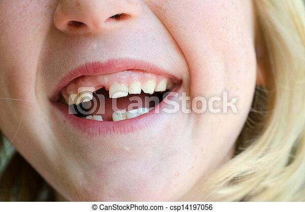行方不明の歯 - csp14197056