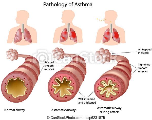 解剖學, 哮喘 - csp6231875