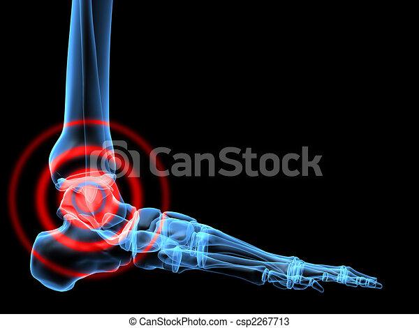 踝, 痛苦 - csp2267713