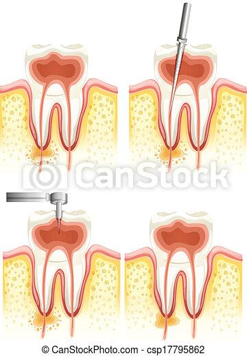 運河, 歯医者の, 根 - csp17795862