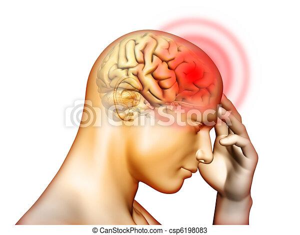 頭痛 - csp6198083