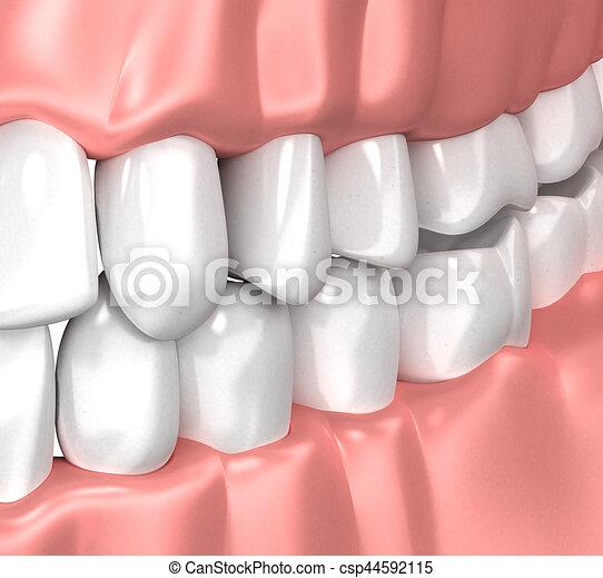 ilustración, anatomía, boca, goma, dientes humanos, 3d clipart ...