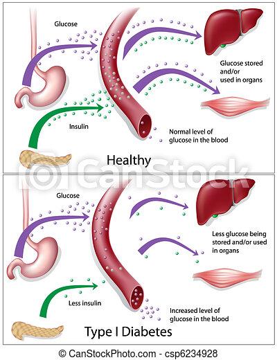 Diabetes tipo 1 - csp6234928
