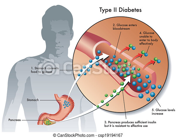 2, tipo, diabetes - csp19194167