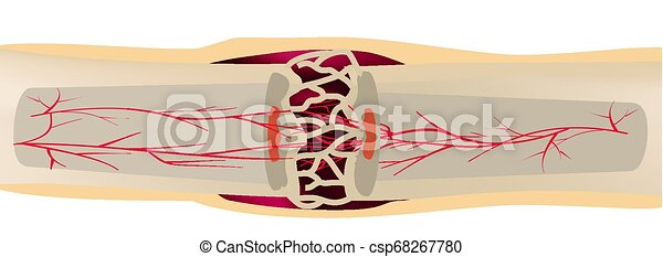 3 Stage Of Healing Bone Fracture. callus ossification. The bone fracture. Infographics. Vector illustration on isolated background. - csp68267780