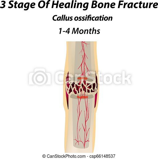 3 Stage Of Healing Bone Fracture. callus ossification. The bone fracture. Infographics. Vector illustration on isolated background. - csp66148537
