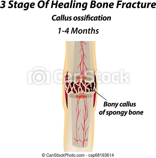 3 Stage Of Healing Bone Fracture. callus ossification. The bone fracture. Infographics. Vector illustration on isolated background. - csp68163614