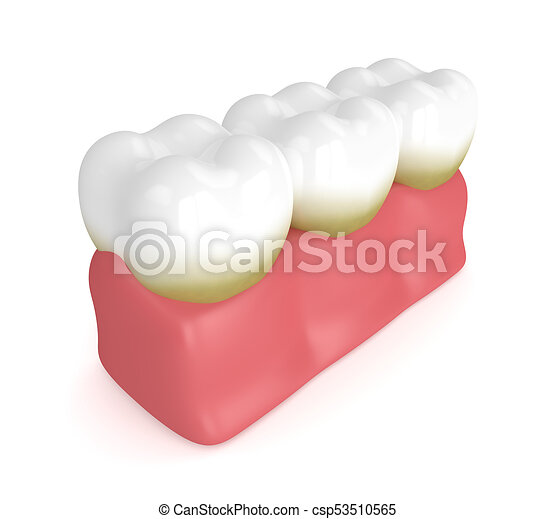 Tooth Character Periodontal Disease With Plaque Or Tartar. Dental.. Royalty  Free Cliparts, Vectors, And Stock Illustration. Image 71217482.