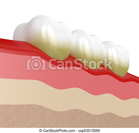 Vector Flat Isolated Illustration Of Dental Calculus, Calcified.. Royalty  Free Cliparts, Vectors, And Stock Illustration. Image 141531872.