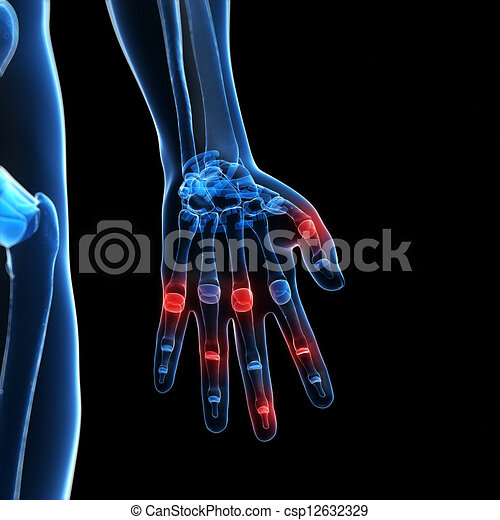 3d rendered illustration of painful finger joints - csp12632329