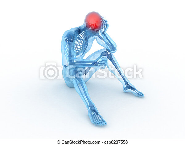 3d rendered medical illustration of a sitting male - headache - csp6237558