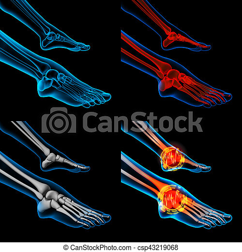 3D rendering human foot pain with the anatomy of a skeleton foot