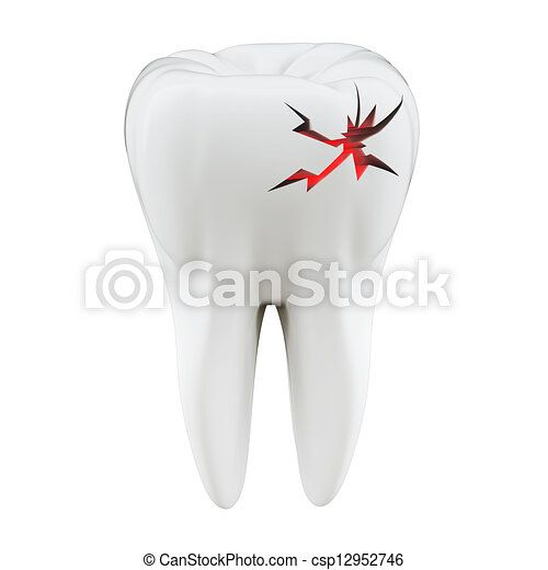 3D toothache concept  - csp12952746