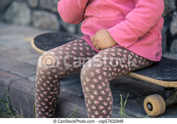 A Beautiful Little Girl Fell On Skateboarding Bruised Knee Injury With Her Hands Close Up The Concept Of Safe And Fun Childhood Childrens