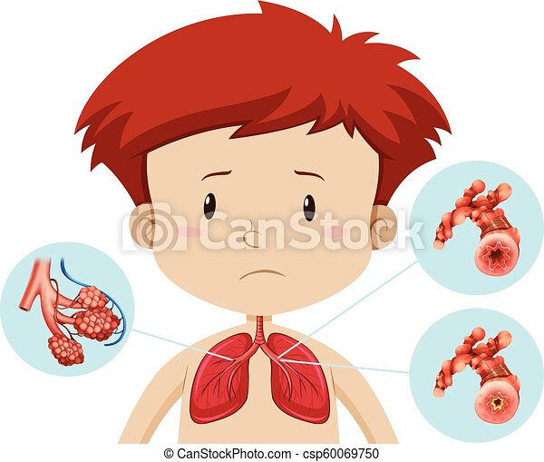 A boy with bronchitis - csp60069750