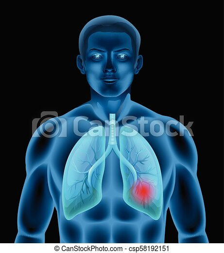 A Human Anatomy of Lung Disease - csp58192151